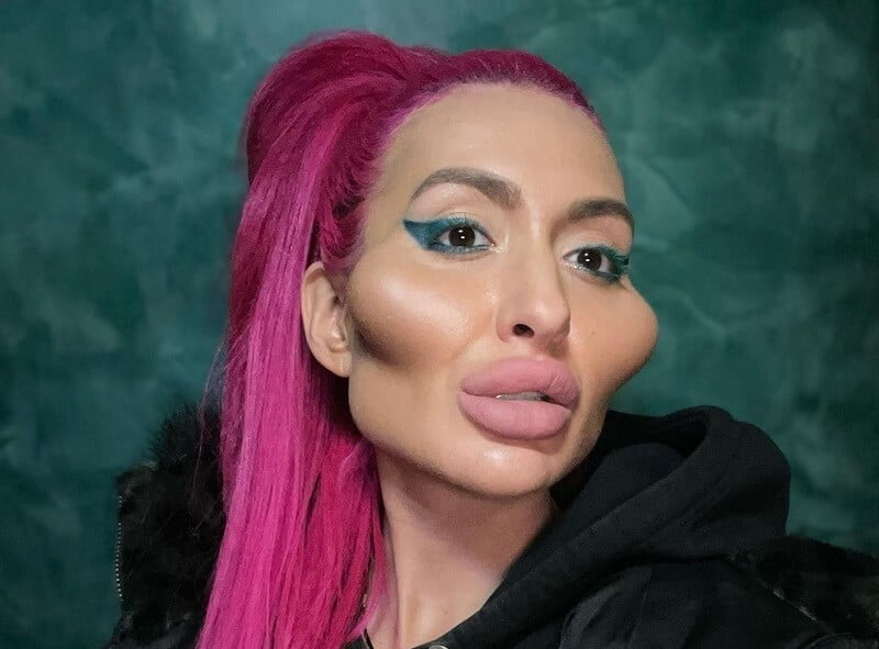 A Ukrainian woman's looks before her plastic surgeries and the resulting peach-sized cheeks